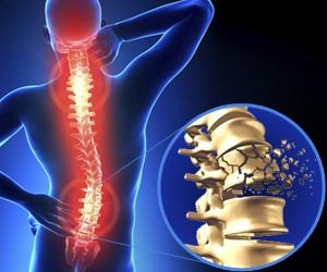 Lesiones de la médula espinal (LME) en el lugar de trabajo
